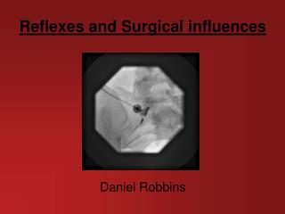 Reflexes and Surgical influences