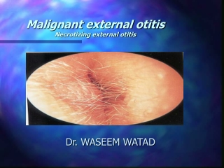 Malignant external otitis  Necrotizing external otitis