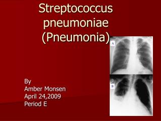 Streptococcus pneumoniae (Pneumonia)