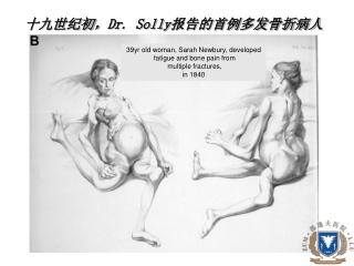 十九世纪初, Dr. Solly 报告的首例多发骨折病人