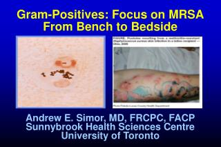 Gram-Positives: Focus on MRSA From Bench to Bedside