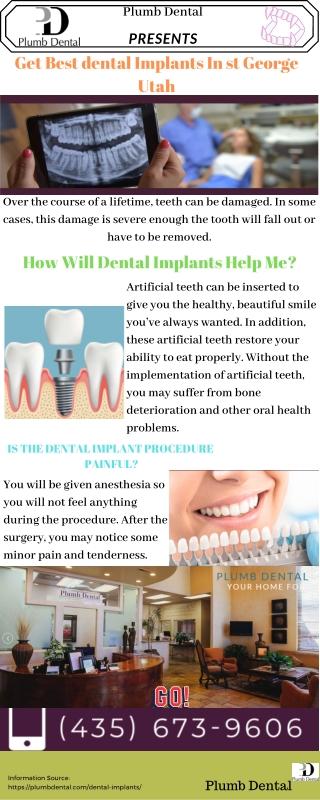Get Best dental Implants In st. George Utah