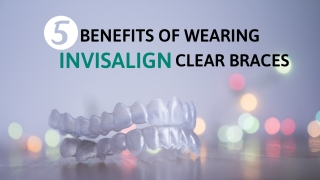 5 Benefits Of Wearing Invisalign Clear Braces