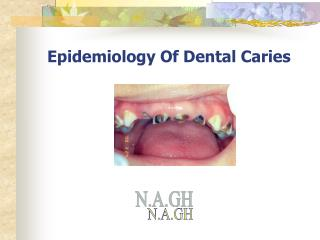 Epidemiology Of Dental Caries