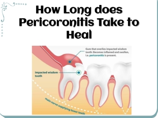How Long Does Pericoronitis Take To Heal