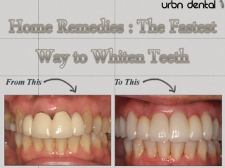 Home Remedies : The Fastest Way to Whiten Teeth